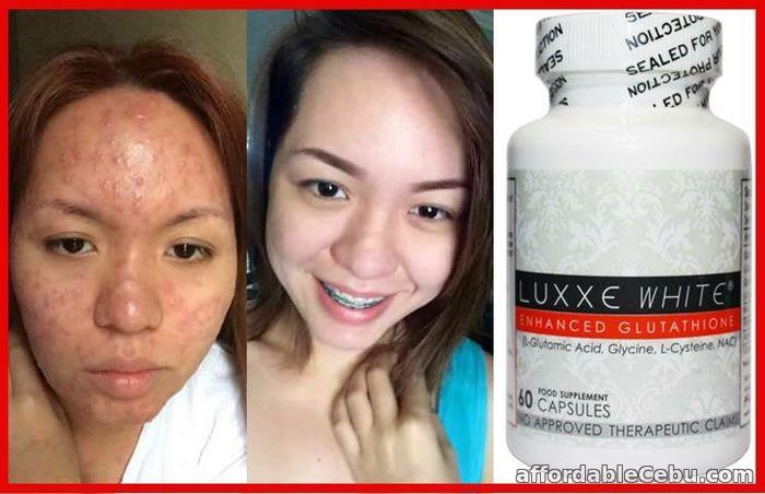 Luxxe White Enhance Glutathione 60capsule in Cebu For Sale Cebu City