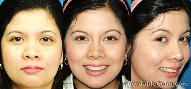 2nd picture of Rhinoplasty (Noselift) Philippines Offer in Cebu, Philippines