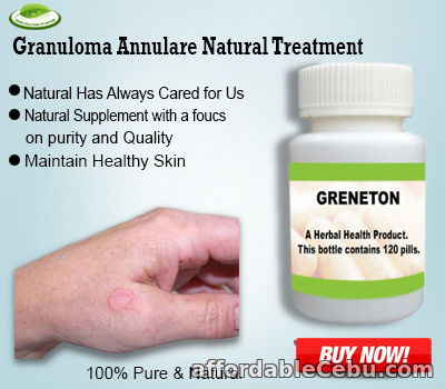 1st picture of Natural Treatment for Granuloma Annulare For Sale in Cebu, Philippines