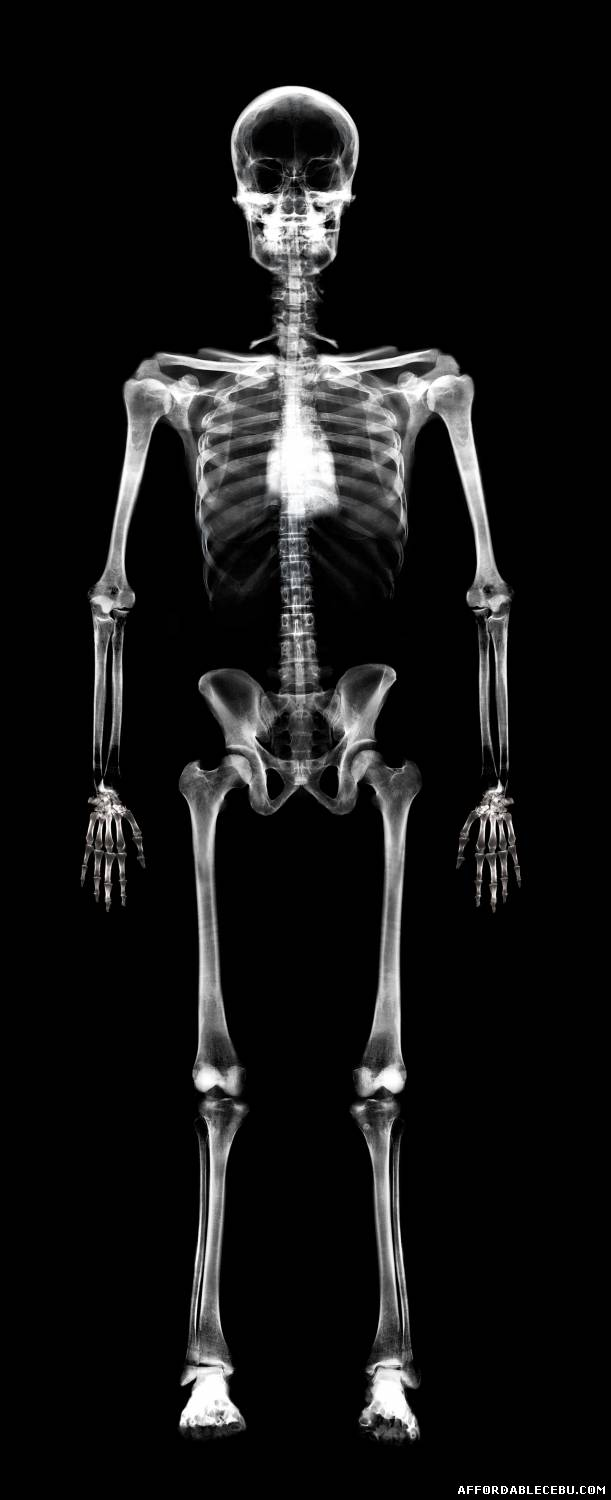 Incredible Human X-Ray...