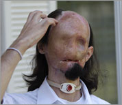 Picture of First Full Face Transplant in US (United States of America) Conducted to Dallas Wiens